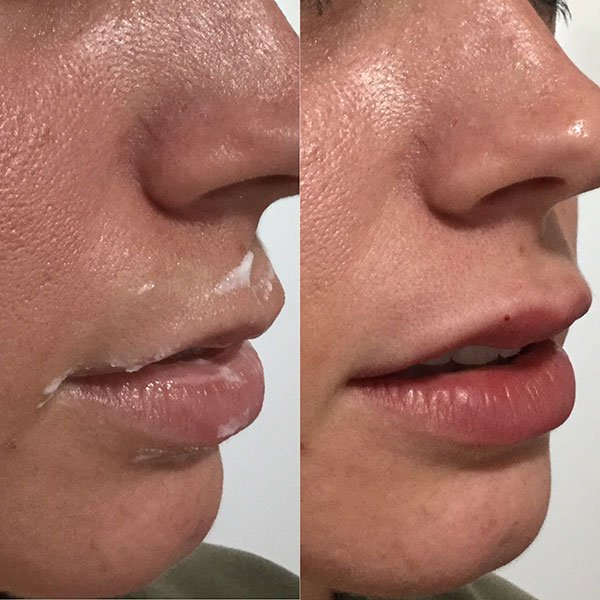 lips-before-after