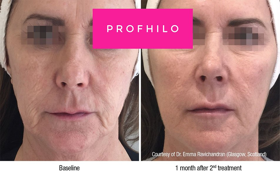 profhilo-before-after