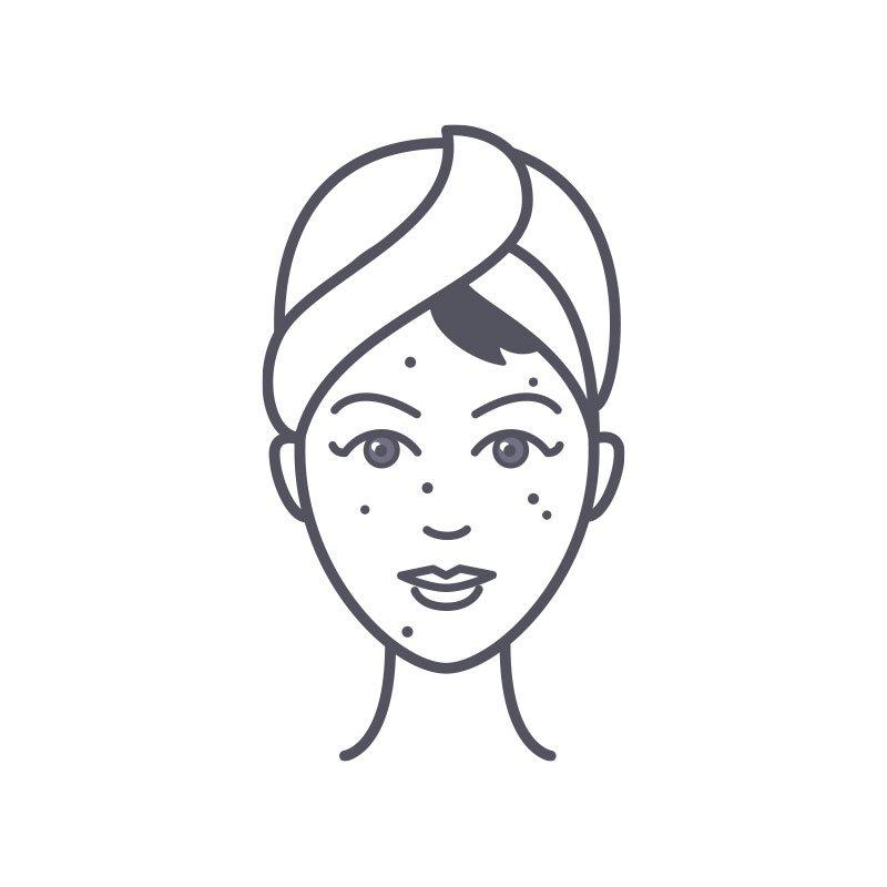 skin-condition-acne