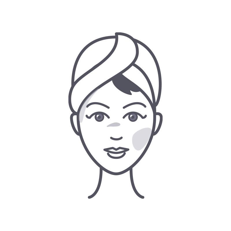 skin-condition-pigmentation