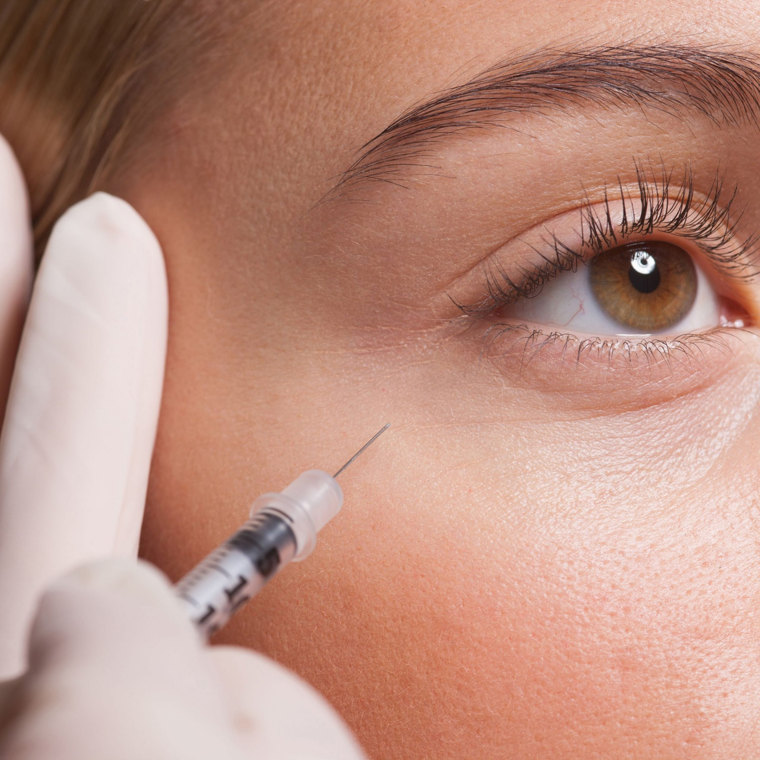 botox injection crows feet